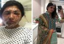 You Can Overcome Anything If You Have Courage.. And This Acid Attack Victim Proves That.