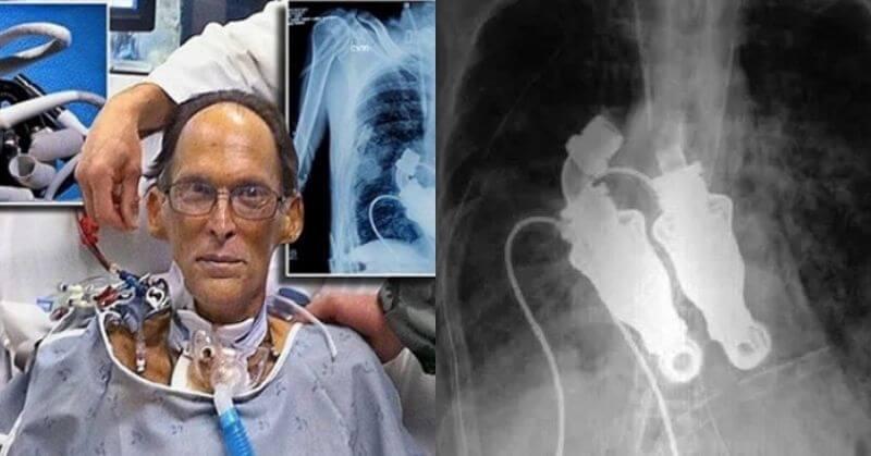 Craig Lewis, World's First Heartless Human